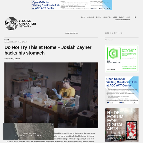 """One of the most recognized faces in biohacking, Josiah Zayner is the focus of the most recent edition of the New York Times' Op-Docs series. """"Gut Hack"""" chronicles his quest to alleviate his lifelong abdominal problems by killing the bacteria in his stomach and replacing it with microorganisms gleaned from an 'ideal' donor."""