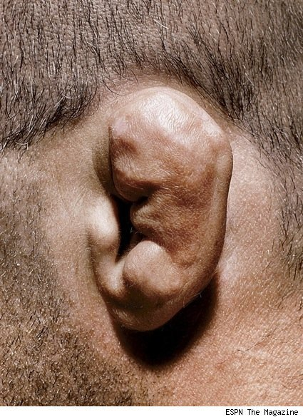 randy-couture-ear.jpg
