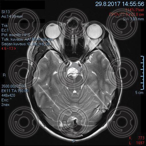 mri-head2.jpg