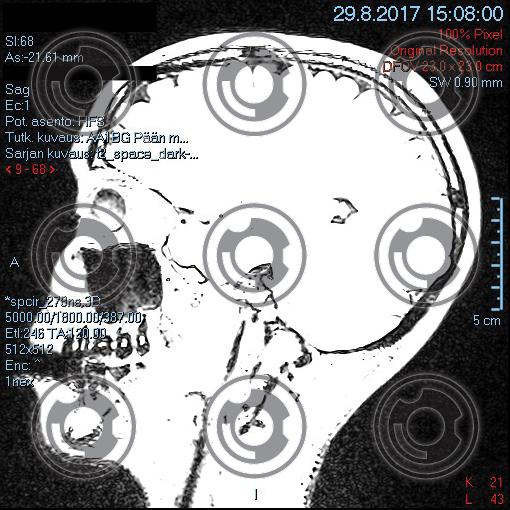 mri-head4.jpg