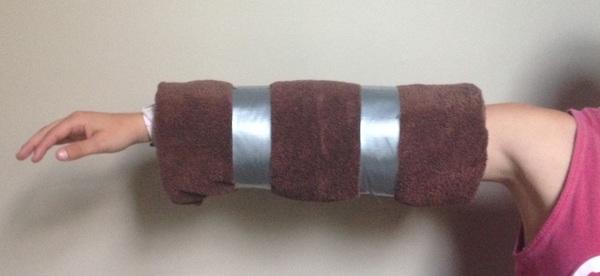 Cubital-Tunnel-Orthosis-Towel-Hite-2015.jpg