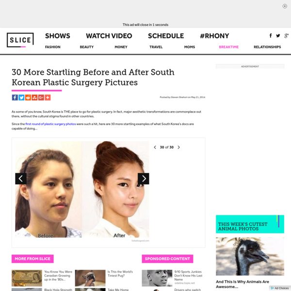 30 More Startling Before and After South Korean Plastic Surgery Pictures | slice.ca