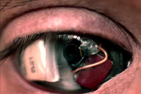 eye-camera-720x720.jpg