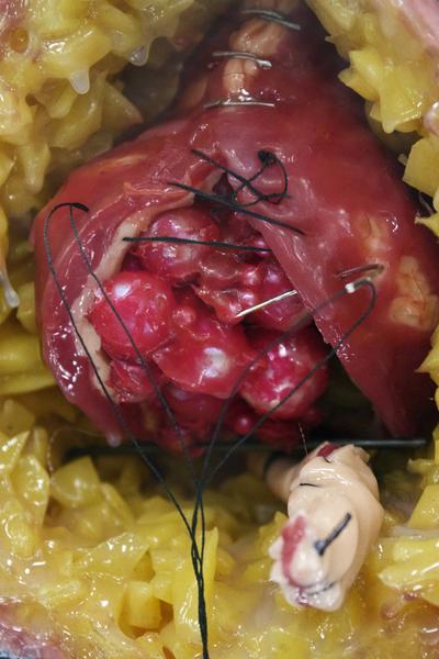 Vesico Vaginal Fistula (detail), 2016