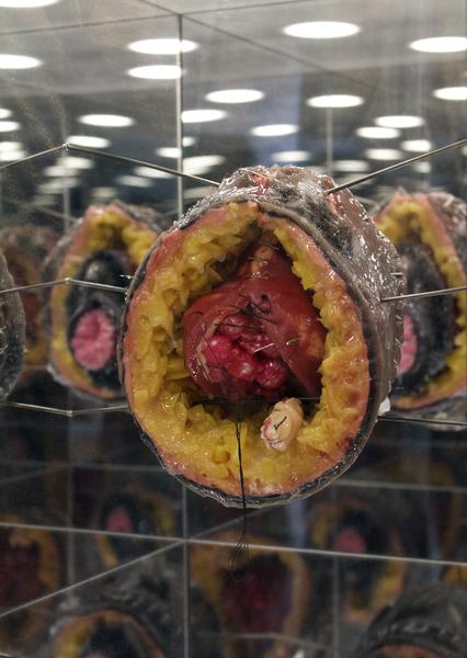 Doreen Garner, Vesico Vaginal Fistula (detail), 2016