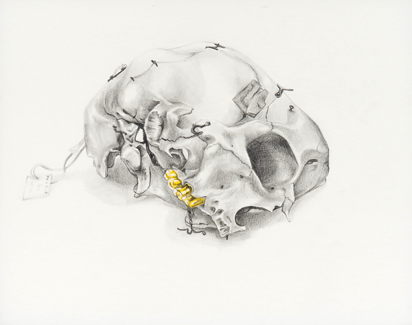 Doreen Garner, Medical Study #5, 2013