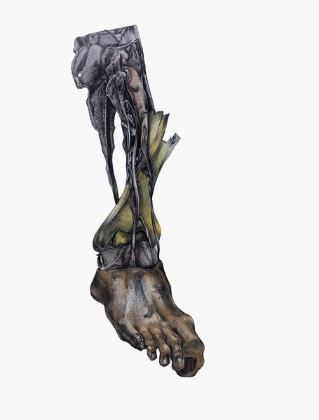 Doreen Garner, Medical Study #4, 2013