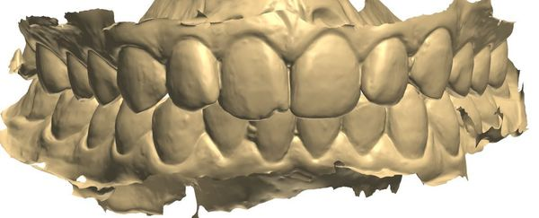 scanned_teeth.jpg.1328x0_q80_crop-smart.jpg