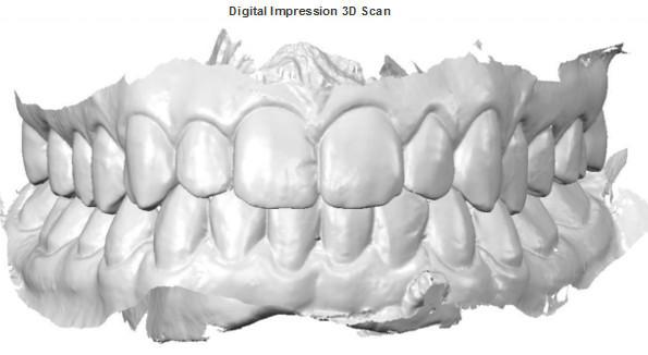3d-scan.jpg