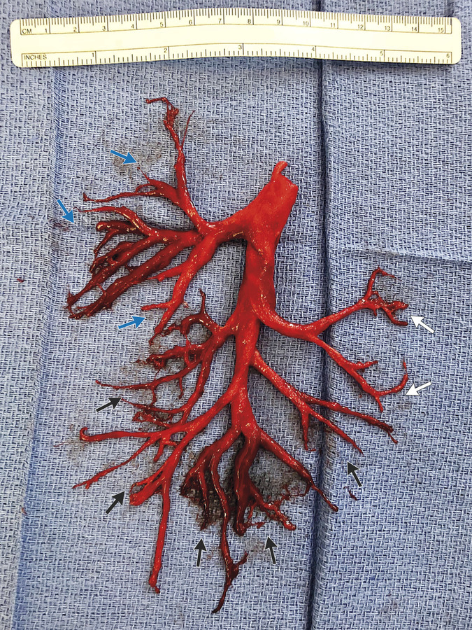 bronchial cast, R