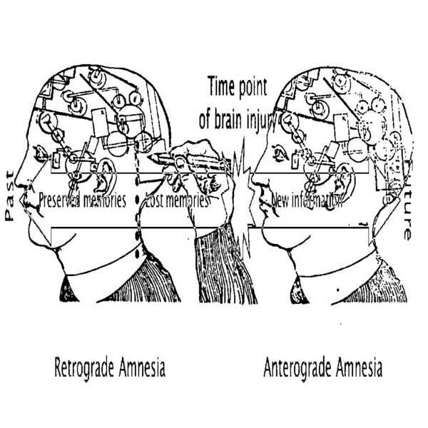 amnesia-scanner_insider_1546425906.jpg