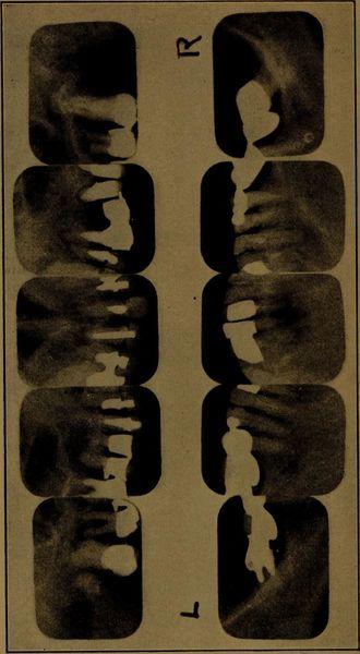 800px-x-ray_manual_-_u.s._army_-1917-_-14757022132-.jpg