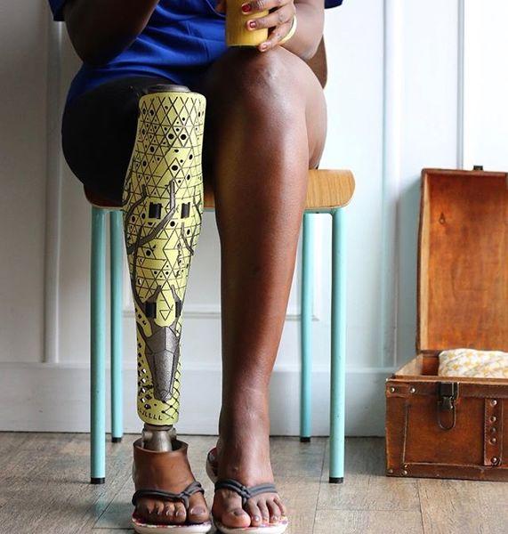 prosthetic leg art