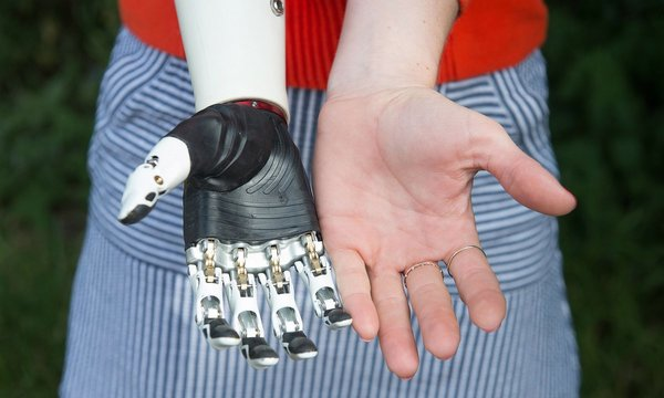 A bionic hand in five days: how tech innovation is changing lives