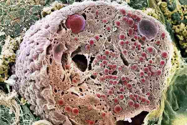 pancreatic_cell-5af5ec33875db90036b4cbba.jpg