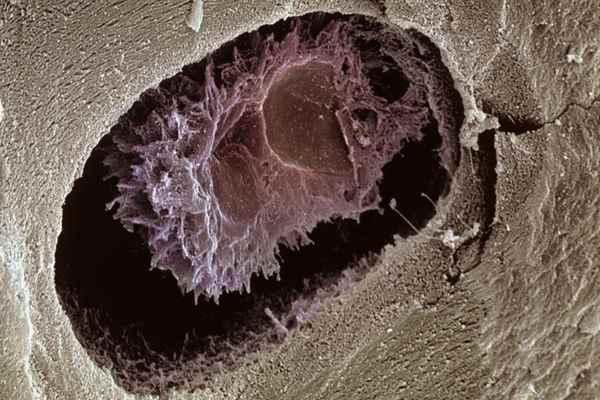 osteocyte-5971f952d088c00010f74435.jpg